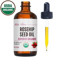 Kate Blanc Rosehip Seed Oil Review